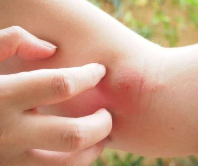 Средство от укусов клопов для кожи