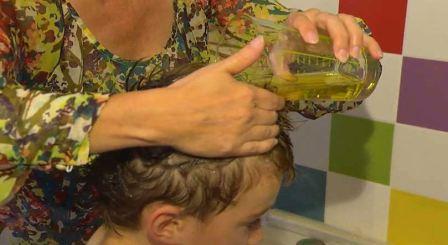 Эффективное средство от педикулеза для детей
